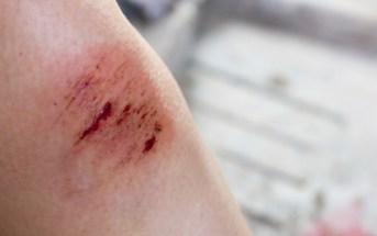 cuidados-topicos-com-ferimentos
