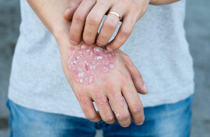 https://guiadafarmacia.com.br/anvisa-aprova-novo-tratamento-para-psoriase/