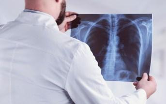 anvisa-aprova-evobrig-brigatinibe-para-pacientes-com-câncer-de-pulmão-metastatico-de-celulas-nao-pequenas-alk