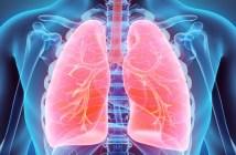 aprovada-no-japao-nova-opcao-de-tratamento-para-pacientes-com-câncer-de-pulmão