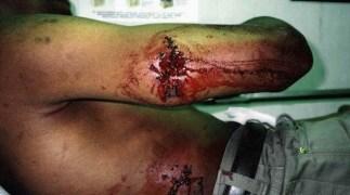 Image result for gunshot wound