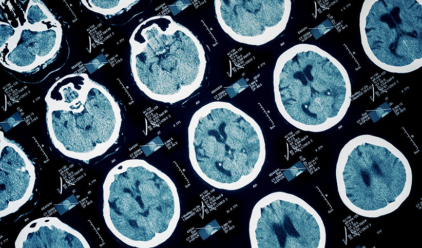 Brain Injury from Car Accidents