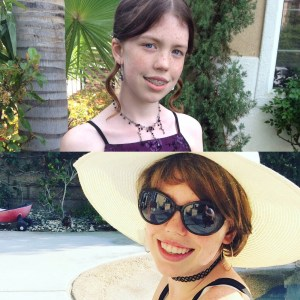 Rachel before and after her SCD Journey