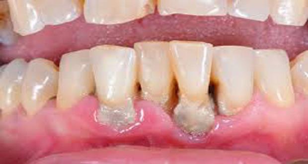 The Dentist Advises Oral Cancer Guyana Chronicle