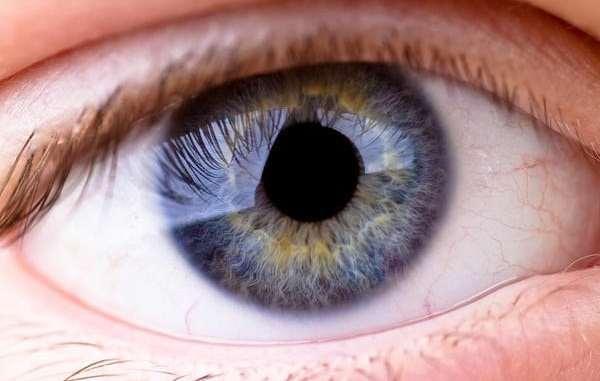 Blue Ring Eye Disease