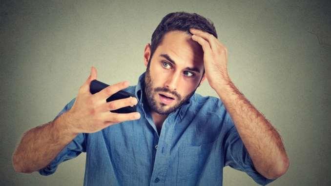 hair loss men