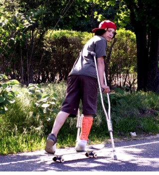 Skateboard-cast-broken_leg-690475-l