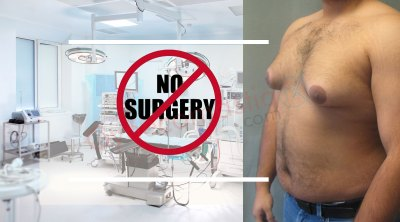Cure Gynecomastia Without Surgery