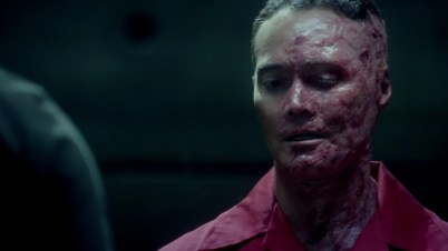 WoFat should try some tea tree oil. They say it helps reduce skin irritations....