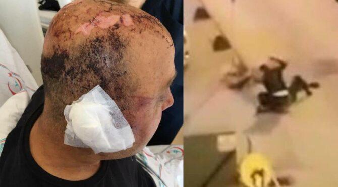 Polisin kafasını telsizle parçaladı, 1,5 yıldır yargılanamıyor