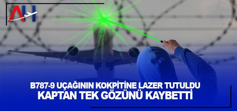 B787-9 uçağının kokpitine lazer tutuldu. Kaptan tek gözünü kaybetti