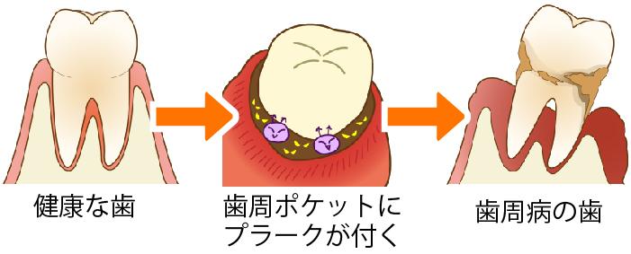 歯周病の進行イメージイラスト