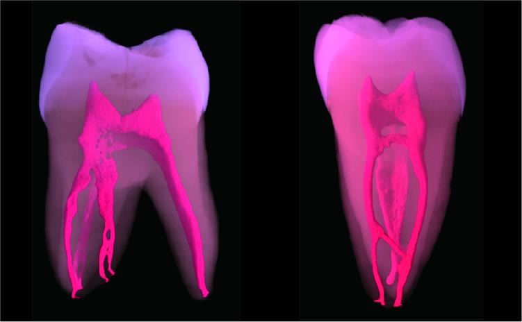 歯の根はとても複雑