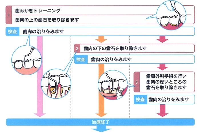 歯周病治療・手術