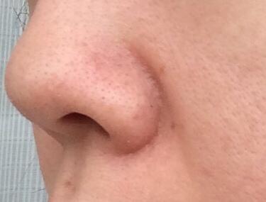 「毛穴の角栓(モサ)について」角栓の基本的な対処法