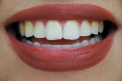 Day 1 (original teeth)