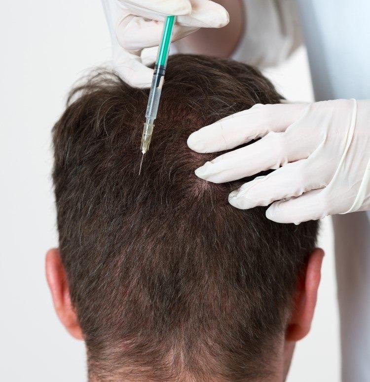 ما هي حقن البلازما للشعر PRP ودورها في علاج تساقط الشعر ؟