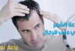 زراعة الشعر في دبي للرجال