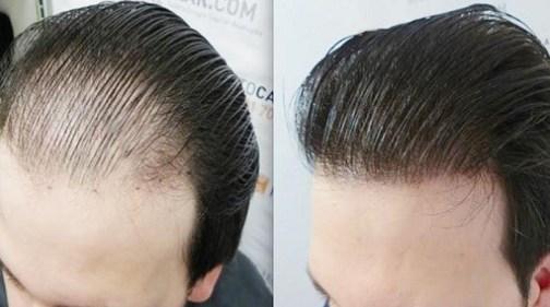 أهم 6 عوامل تؤثر على تكلفة عملية زراعة الشعر