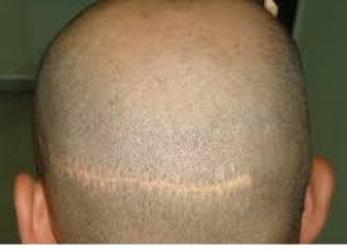 زراعة الشعر بطريقة الشريحة FUT