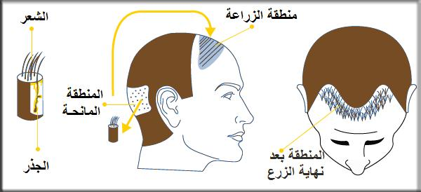 زراعة الشعر بتقنية الشريحة FUT