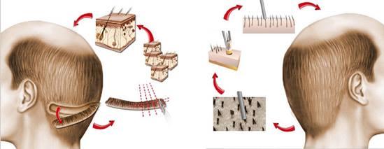 الفرق بين زراعة الشعر بالشريحة FUT وزراعة الشعر بالاقتطاف FUE