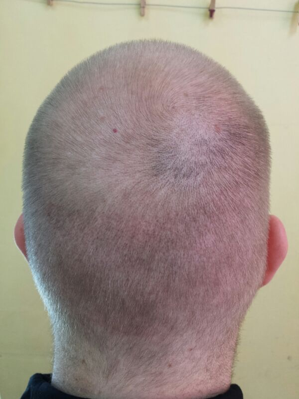 Hair transplant results, 11 days later
