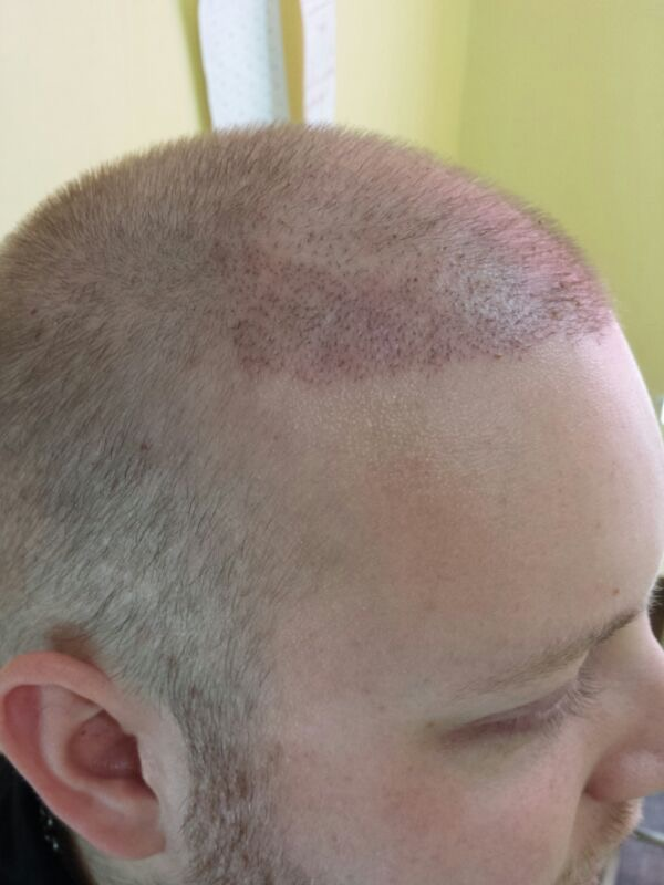Hair transplant results 11 days