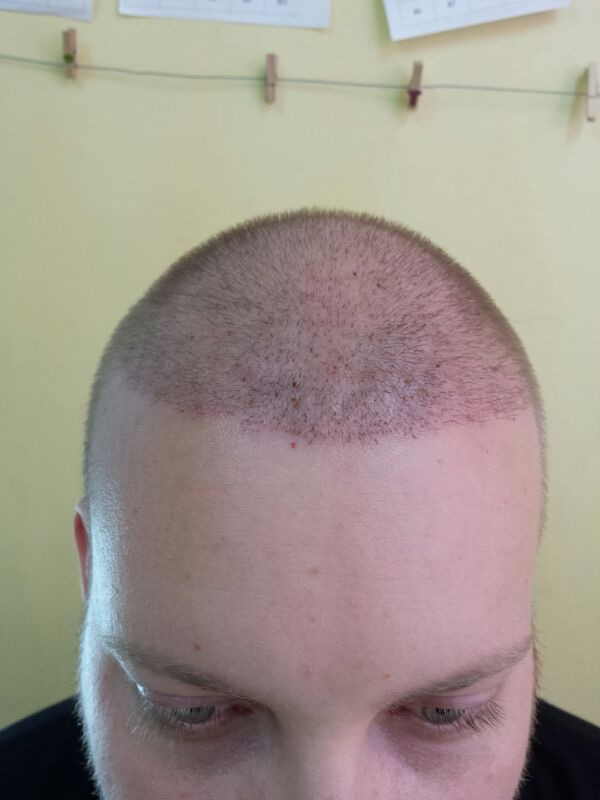 Hair transplant result photo