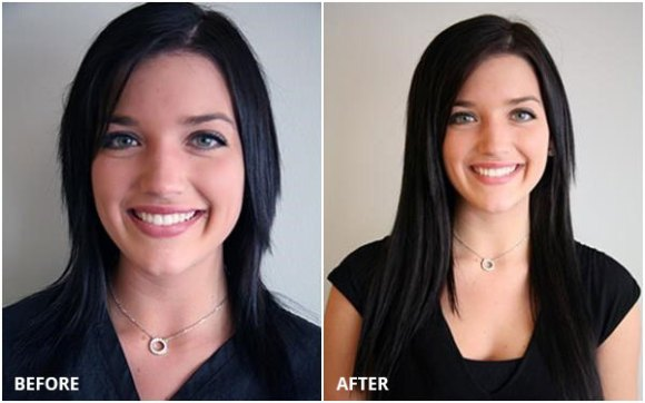 hair-extensions-before-after-1