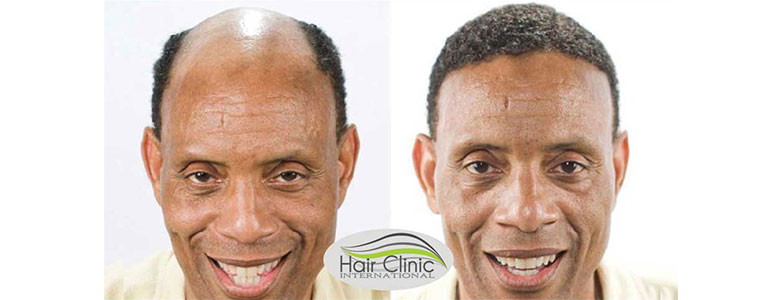 hair loss - hair clinic international