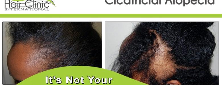 Cicatricial Alopecia