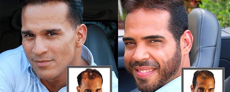 Non Surgical Hair Replacement solutions
