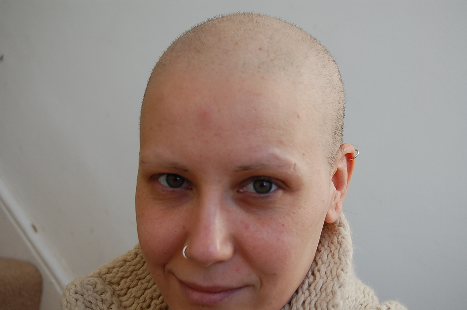 March 2010 Hair Growth After Chemo