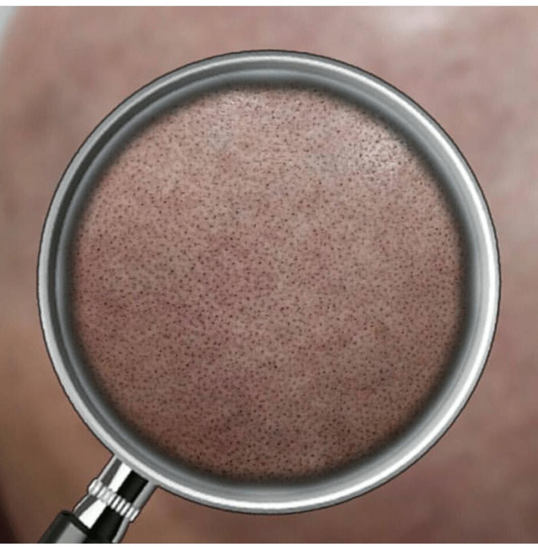 Scalp Micropigmentation Zoom Focus