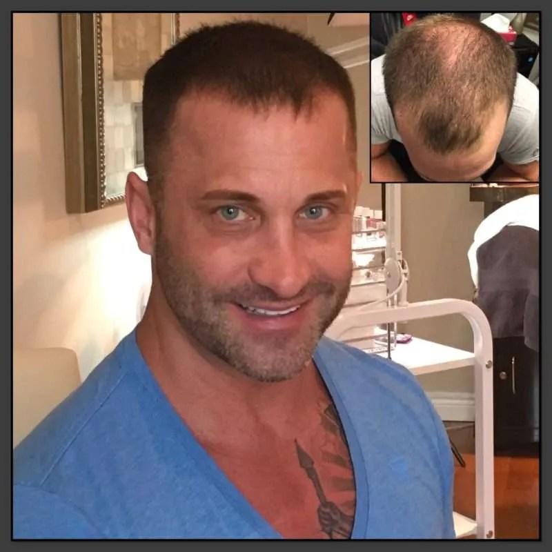 Hair Illusions Darin Testimonial | Scalp Micropigmentation