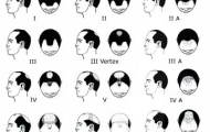 male-pattern-baldness-stages-illustration