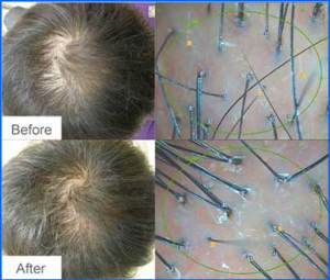 biomimetic-mesotherapy-baldness-alopeciacure