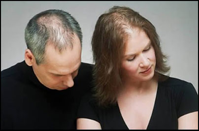 Image result for Age And Hormones Causes Hair Loss