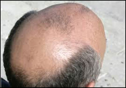 Natural Cure For Frontal Baldness
