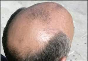male-pattern-baldness-causes-treatments