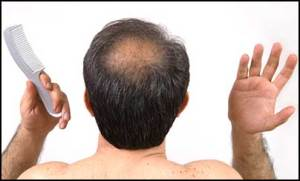 new-drug-baldness-cure-discovery