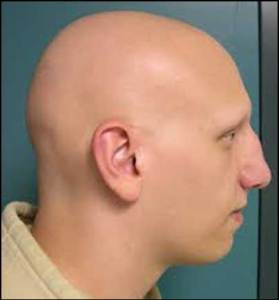 alopecia-totalis-type-of-hair-loss