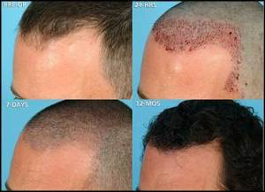 hair-transplant-male-hair-loss