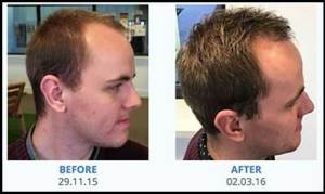 regrowz-baldness-treatment-01