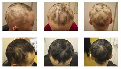 extreme hair loss remedies