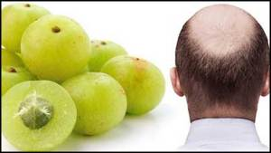 amla-for-baldness-cure