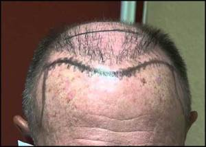 hair-plugs-vs-hair-transplant-01