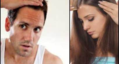 receding-hair-men-women