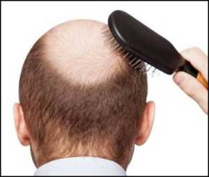ginger-hair-loss-cure